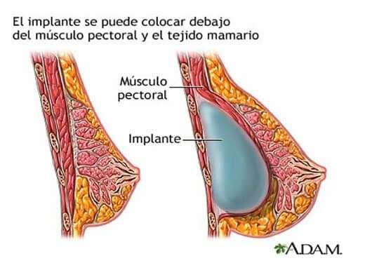 aumento de pecho via colocacion del implante submuscular