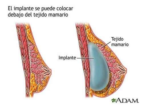 aumento de pecho via de colocacion del implante subfascial / subglandular