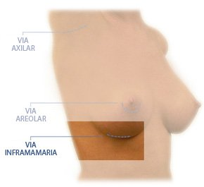 aumento de pecho via inframamaria