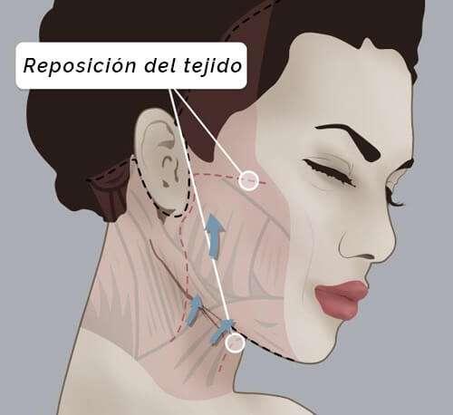 reposicion del tejido en lifting facial