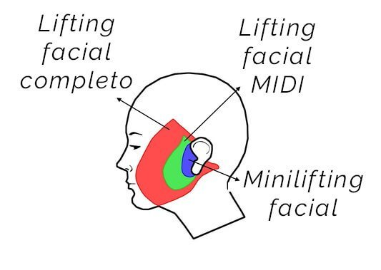 tipos del lifting facial