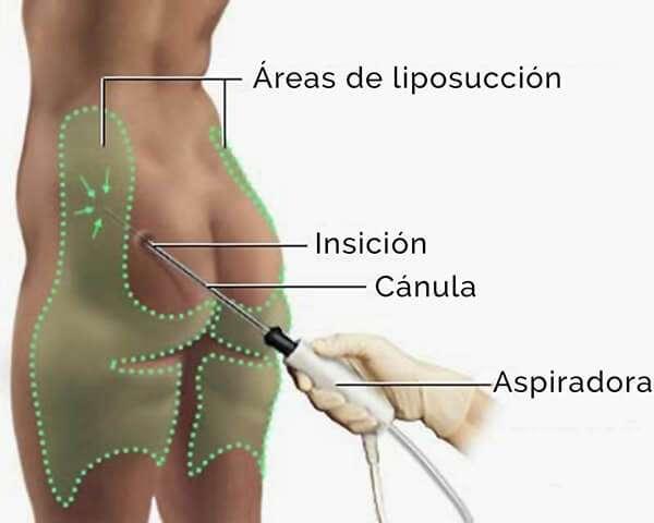 tecnica de liposuccion esquema