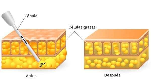 liposuccion canula celulas grasas