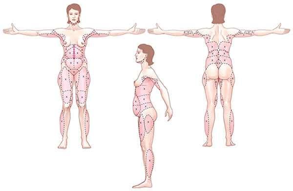 liposuccion zonas esquema