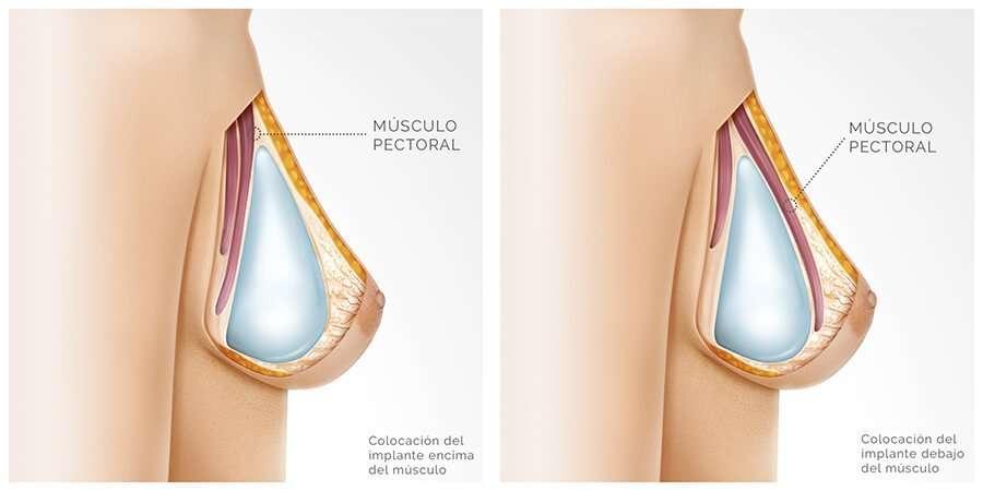 El ajuste y el aumento del pecho redondo implantami