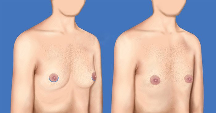 mastectomía hemi-areolar