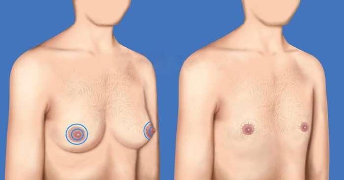 mastectomía incisión peri-areolar