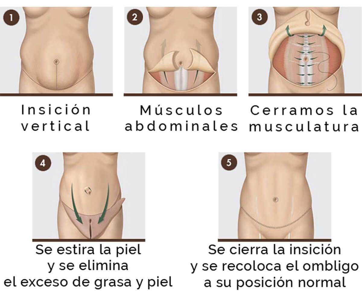 abdominoplastia esquema