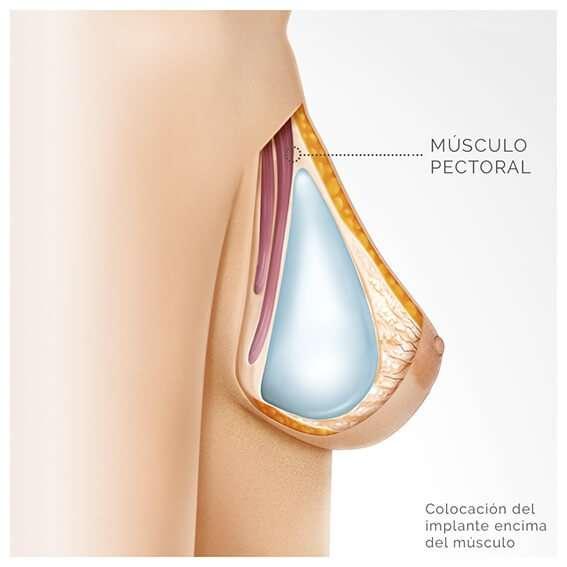 colocacion del implante en plano subglandular o subfascial