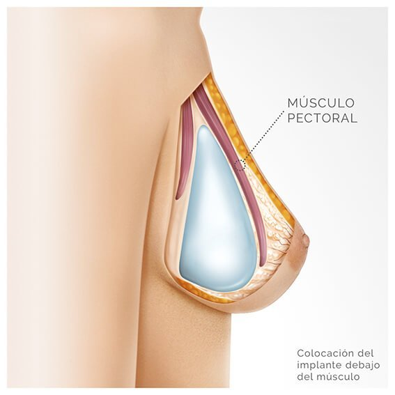 colocacion del implante en plano submuscular
