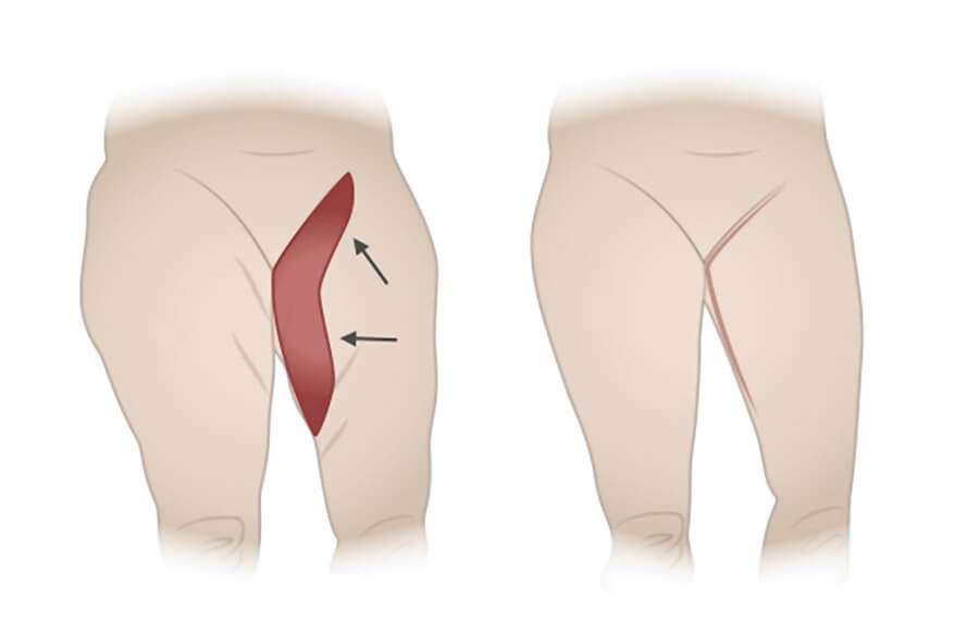 esquema de cruroplastia