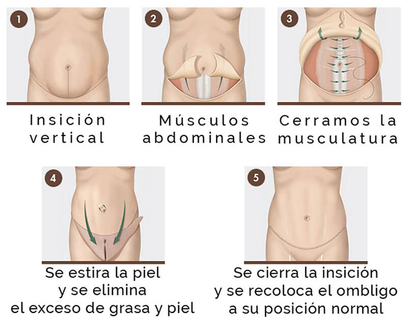 abdominoplastia esquema de incisiones