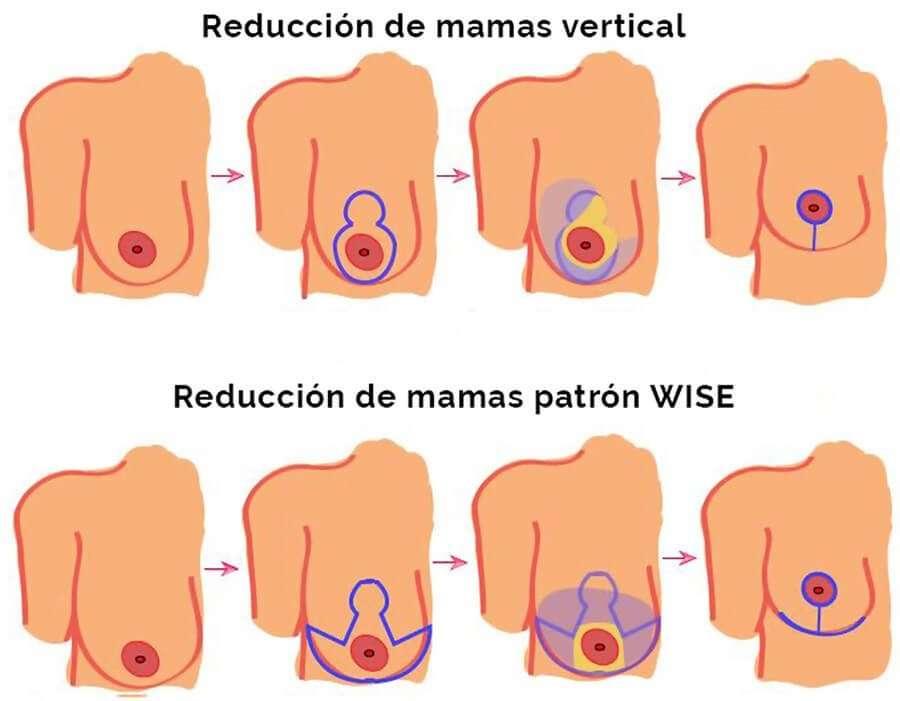 mamoplastia de reducción esquema patrones