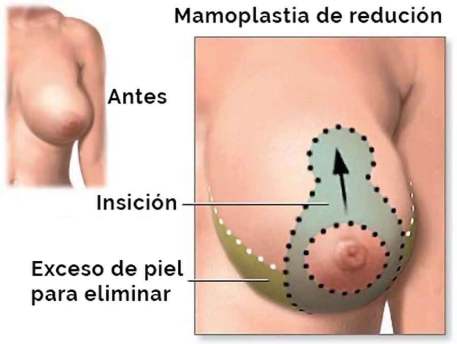 mamoplastia de reducción esquema patrón wise