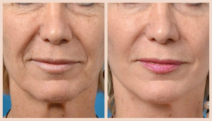 resurfacing laser antes y despues