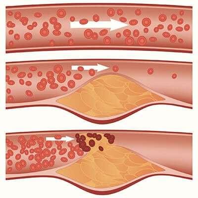 colesterol esquema