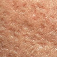 cicatrices de acne boxcar