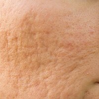 cicatrices de acne onduladas