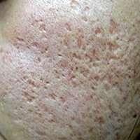 cicatrices de acne picahielo