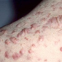 cicatrices de acne queloideas