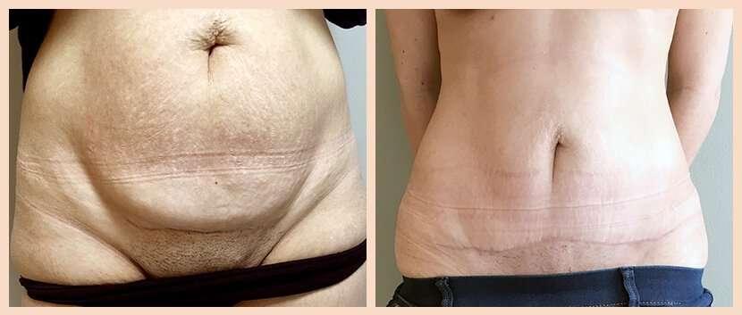 abdominoplastia antes y después