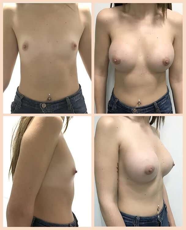 aumento de pecho antes y después