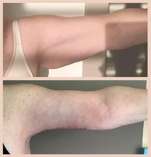 braquioplastia antes y despues