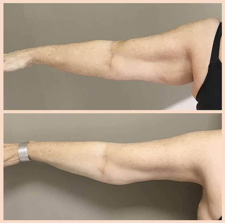braquioplastia antes y después