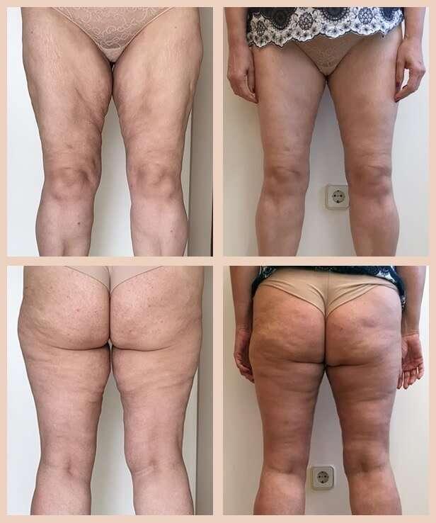 cruroplastia antes y despues