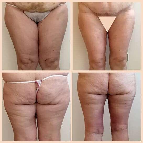 cruroplastia antes y después