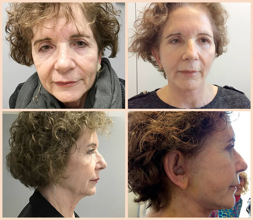 lifting facial antes y después