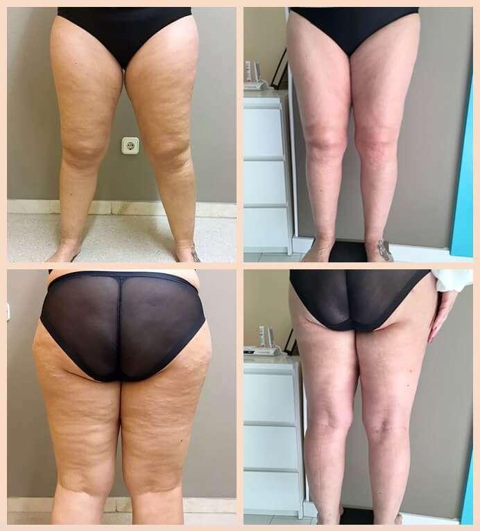 liposucción antes y después