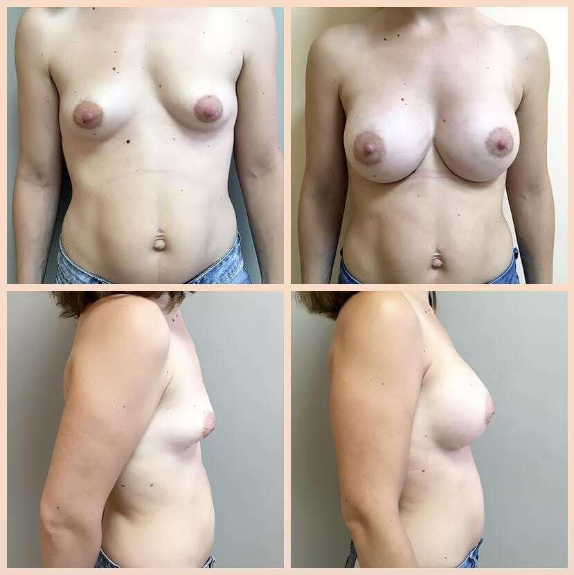 mamas tuberosas antes y después