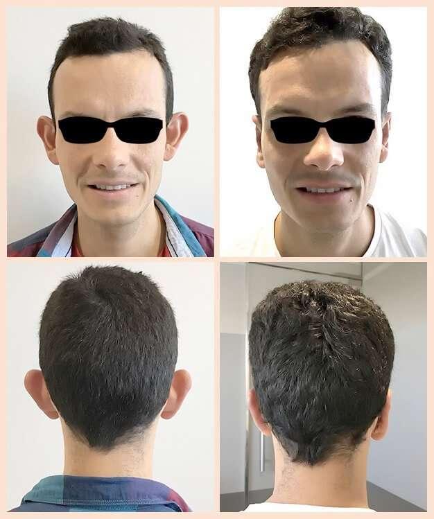otoplastia antes y después