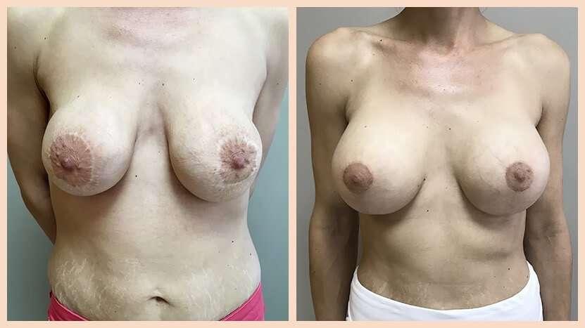 recambio de prótesis antes y después