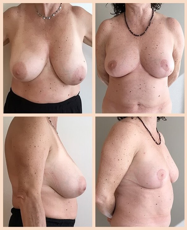 reducción de pecho antes y después