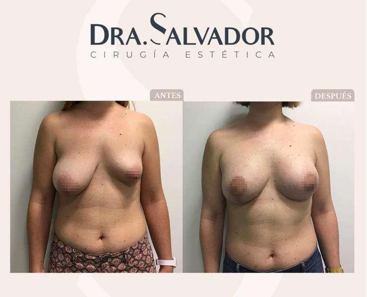 cirugía simetría antes y después