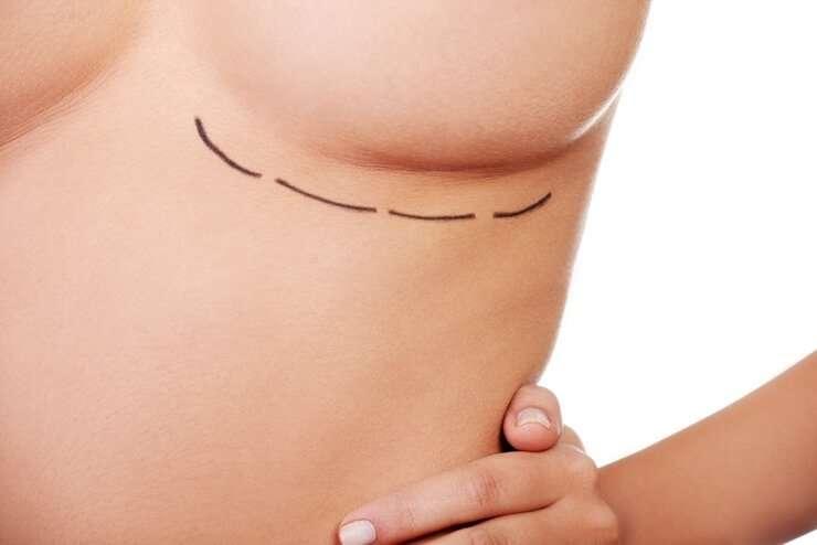 cirugia asimetria mamaria doctora salvador