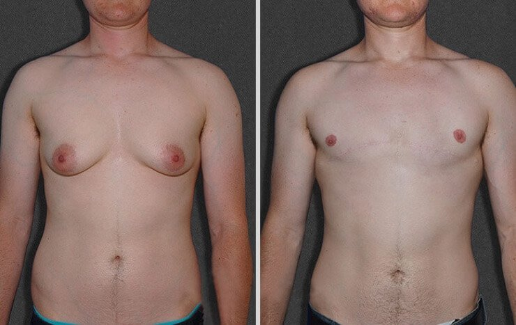 fotos mastectomia chicos trans