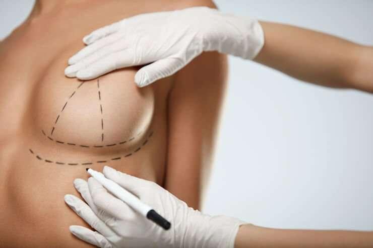 cambio implantes