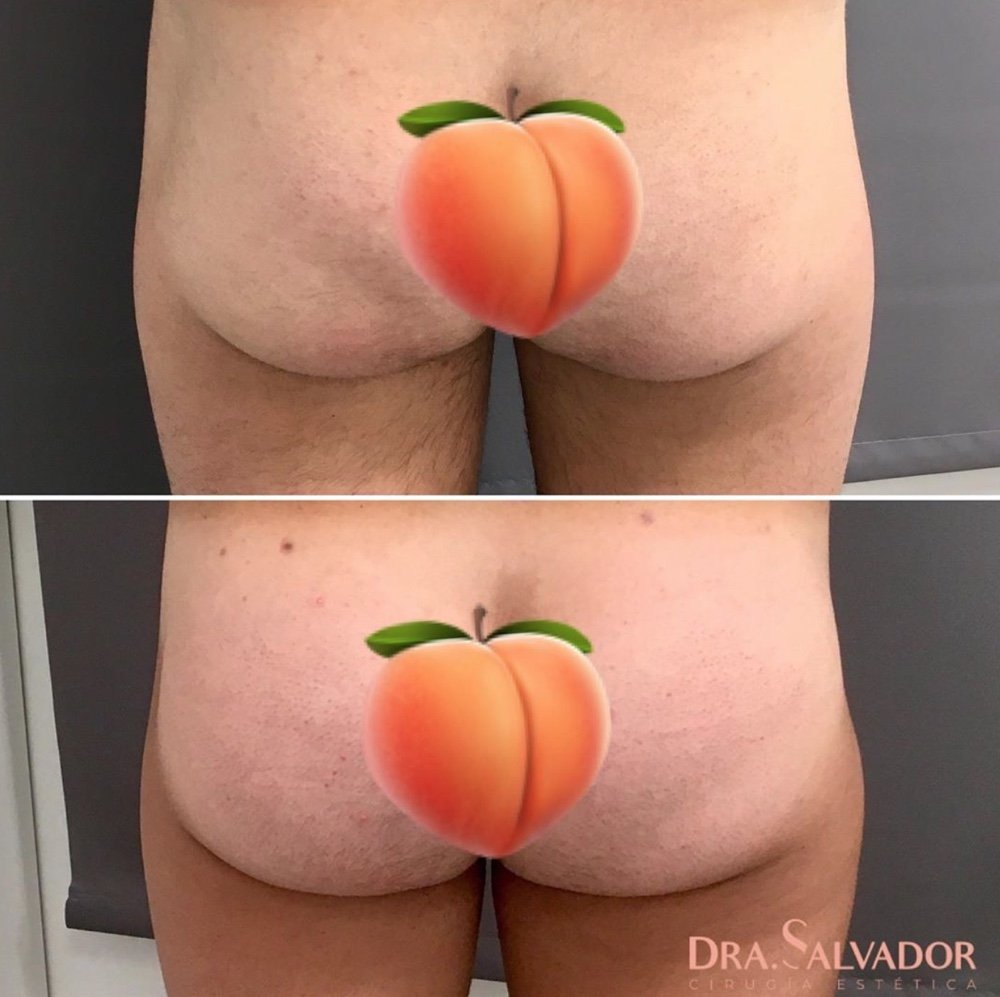 gluteoplastia implantes barcelona