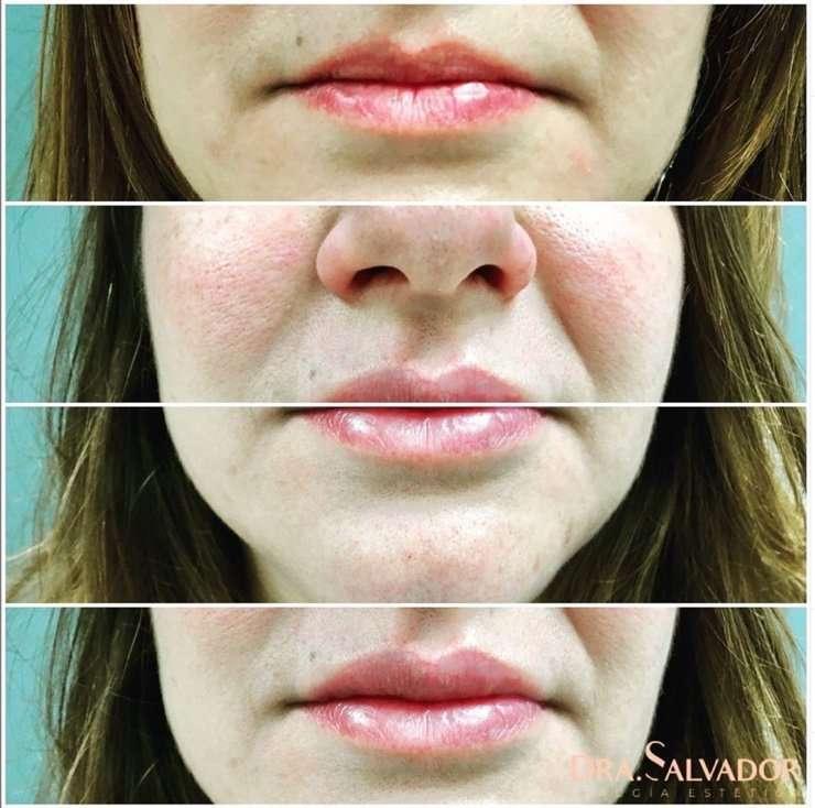 relleno de labios con acido hilauronico