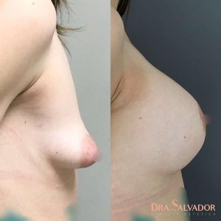 fotos aumento mamas antes despues